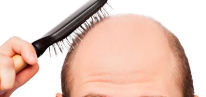 植毛について ヘアケア講座