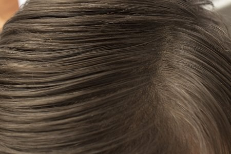 頭皮の臭いの原因