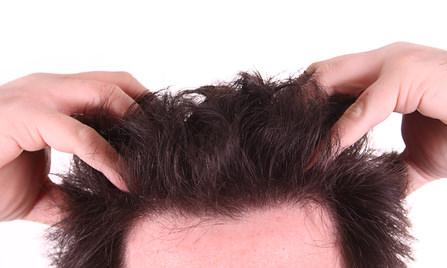 頭皮のかゆみの原因③-3 爪を立てる