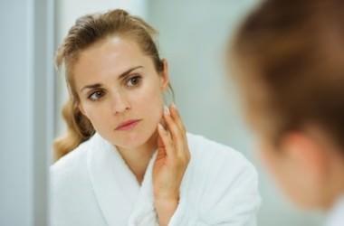 頭皮ニキビは肌に出来るニキビの薬で治せるの? ヘアケア講座 頭皮ケア(スカルプケア)