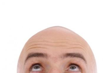 頭皮の構造(表皮・真皮・脂肪皮)