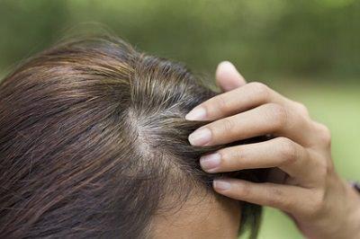 髪の毛 を 抜く 行為