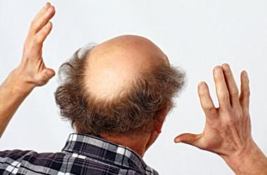 男女で異なる脱毛の原因と症状、改善方法は?