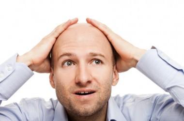 欧米人に薄毛が多いのはなぜ?