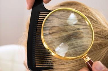 頭皮にほくろができる原因と対処法