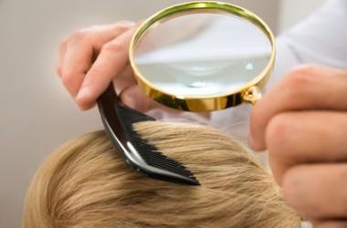 頭皮のシミの原因
