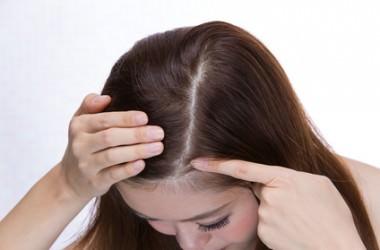 頭皮ニキビと毛穴の炎症の違い ヘアケア講座 頭皮ケア(スカルプケア)