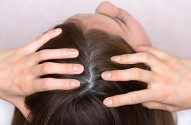 オイリー頭皮は薄毛の原因に! ヘアケア講座 頭皮ケア(スカルプケア)
