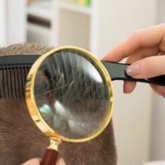 レーザーブラシは育毛に効果的なの?