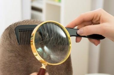 薄毛治療「育毛メソセラピー」とは