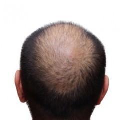 育毛と発毛の違い