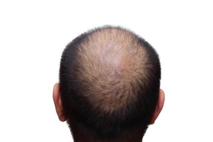男性の薄毛の原因と改善法とは
