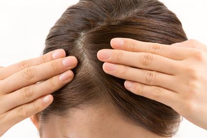 日常の頭皮トラブルとケア