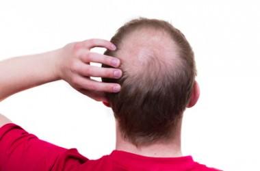 一度なくなった髪をまた生やすのは可能?