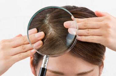 自宅で頭皮の皮脂量をチェックする方法