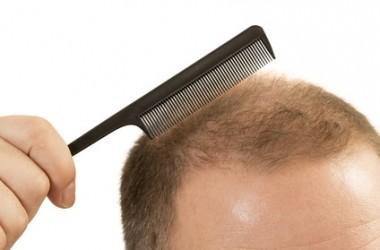 人によって薄毛が進行する場所が違うのはなぜ?