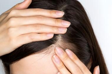 頭皮が乾燥しやすい人は危険?