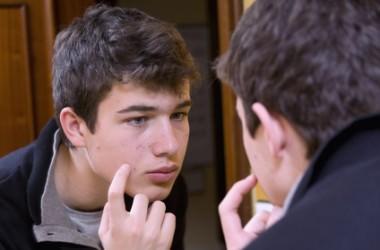 思春期にニキビが多かった人は薄毛のリスクあり?