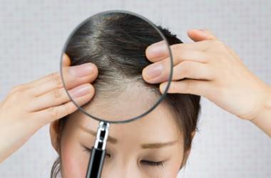 あなたの頭皮は大丈夫?頭皮診断チェックリスト ヘアケア講座 頭皮ケア(スカルプケア)