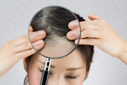 あなたの頭皮は大丈夫?頭皮診断チェックリスト