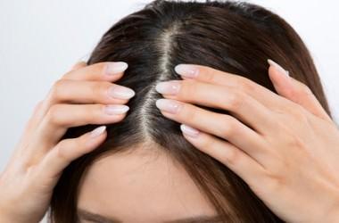 頭皮のつっぱりを感じる時の対処法 ヘアケア講座 頭皮ケア(スカルプケア)