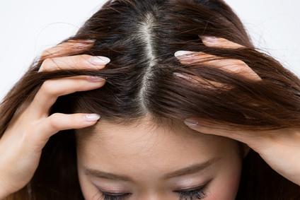 「頭皮の乾燥」の画像検索結果