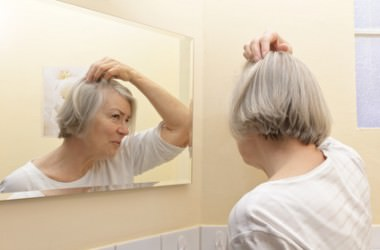 高齢者に多い頭皮のシミの原因とは