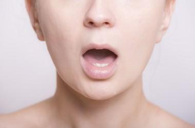 口臭がある人は薄毛になるの?