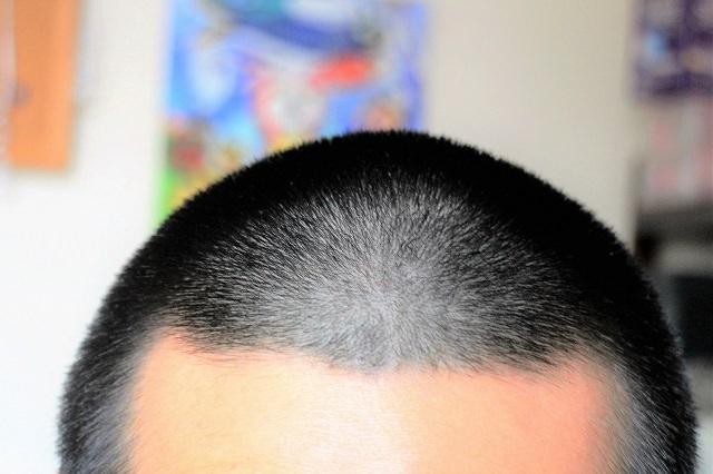 髪の毛をタトゥーで描く「ヘアタトゥー」とは?