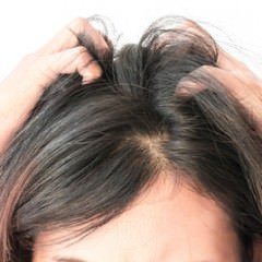 アナタの頭皮は大丈夫?頭皮湿疹が原因の「フケ」