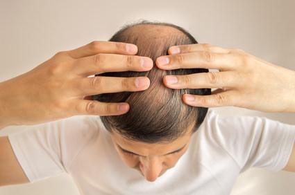 脱毛症についてのアドバイスとポイントとは?