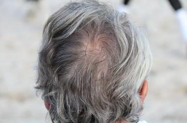 植毛でも育毛でもない!薄毛の最先端治療「ヘアクローニング」とは ヘアケア講座