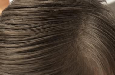 頭皮のホクロは除去したほうがいいの? ヘアケア講座 頭皮ケア(スカルプケア)