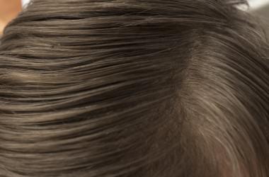 頭皮の色、状態でわかること