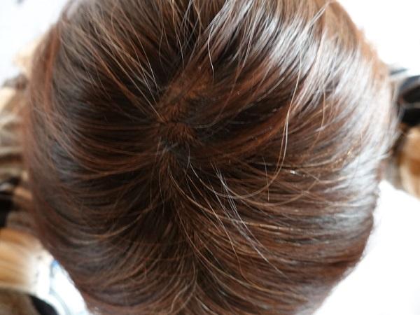 女性頭皮1