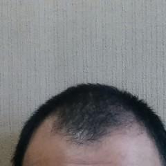 静電気は脱毛の元だった?