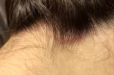 頭皮の赤い斑点の原因は!?