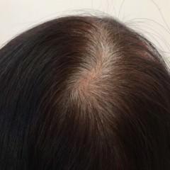 「若白髪」の原因
