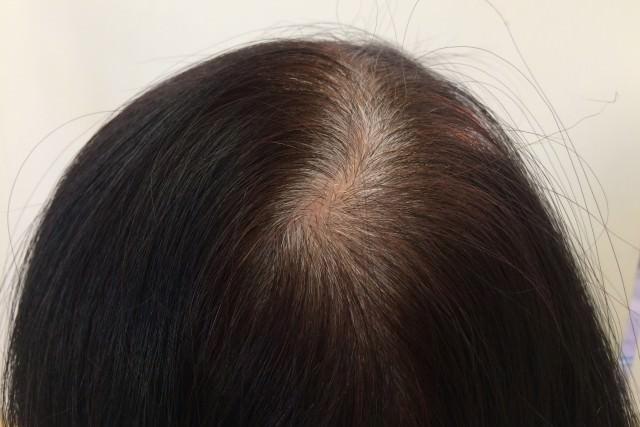白髪を黒髪に戻すブラックリバース処方とは