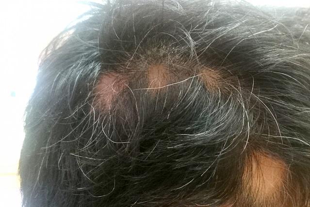 ストレスと円形脱毛症との関係と円形脱毛症の対策   知らなきゃ損 ...