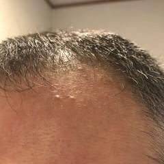 ナイトキャップで薄毛、抜け毛が防げるって本当?