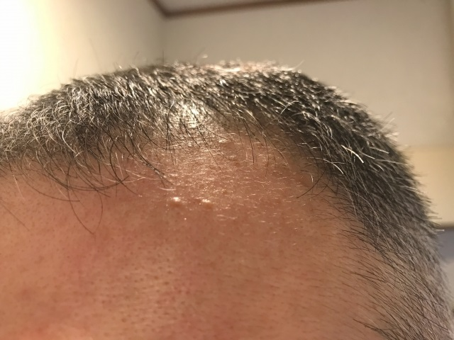 アナタの生活習慣は大丈夫?薄毛の原因と対策